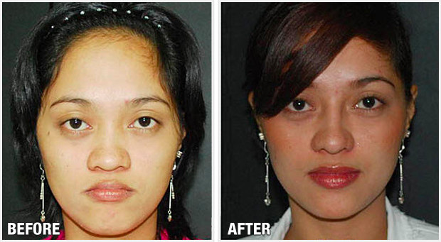 Images of Filipino Nose Job - #rock-cafe