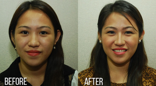 Before & After Rhinoplasty - Enhancements Cosmetic Surgery